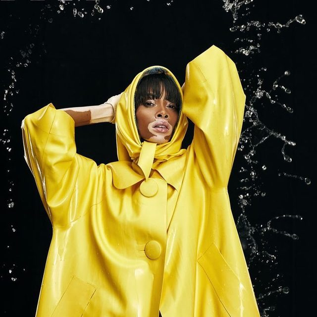 Rain in May, but make it fashion.  ELLE March 2019 credits: Editor-in-chief: @ninagarcia Creative Director: #stephengan Photographer: @maxpapendieck Model: @winnieharlow, @womenmanagementny Stylist: @katie_mossman Wearing: @normakamali, @akrisofficial, @livetheprocess, @ericjavits, @thesockmannyc, @hunterboots Hair: @hoshounkpatin, @womenmanagementny Nails: @adakiss for @chanelofficial Makeup: @_virginiayoung_ Set design: @fashionset, @defactoinc On-set production: @wojtek.xyz Casting: @richardblandino Production: @wojtek.xyz