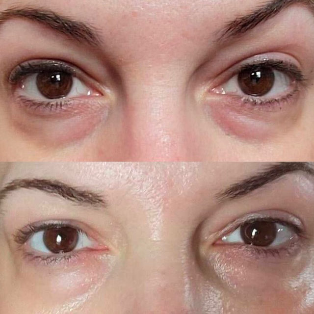There's nothing I love more than seeing one of your amazing Before & Afters! ❤️ All eyes on this one 👀 ➡️  ⠀⠀⠀⠀⠀⠀⠀⠀⠀ When I developed my Intensive Eye Renewal Cream with Firming Peptides, I knew I wanted a formula that treated ALL of your concerns. Packed with 9 active ingredients, this eye cream PLUMPS, LIFTS, FIRMS, BRIGHTENS, HYDRATES, FADES DARK CIRCLES and FIGHTS FINE LINES & WRINKLES ✨  ⠀⠀⠀⠀⠀⠀⠀⠀⠀ What are you waiting for? Add this staple to your routine ❤️  Tap to shop Intensive Eye Renewal Cream with Firming Peptides at @sephora, or click the link in my bio! #SkinByShani #Sephora