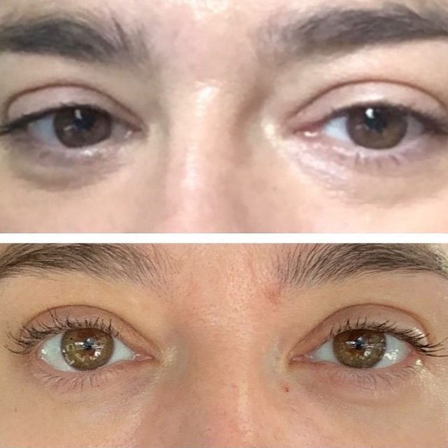Still amazed by the results you are all experiencing using my Intensive Eye Renewal Cream with Firming Peptides! ➡️ 👀 ❤️  ⠀⠀⠀⠀⠀⠀⠀⠀⠀ Not only is this formula clinically-proven to reduce dark circles by 39%, in as little as 4 weeks, but it also helps to smooth the look of fine lines, hydrate, and plump! ✨  ⠀⠀⠀⠀⠀⠀⠀⠀⠀ The ultimate multi-talker, my Intensive Eye Renewal Cream, is available at @Sephora in-store & online. Have you tried my newest product? 💜 #SkinByShani #Sephora  ⠀⠀⠀⠀⠀⠀⠀⠀⠀ ⠀⠀⠀⠀⠀⠀⠀⠀⠀ ⠀⠀⠀⠀⠀⠀⠀⠀⠀ ⠀⠀⠀⠀⠀⠀⠀⠀⠀ — *Unretouched Before & After photo self-submitted by a real client.